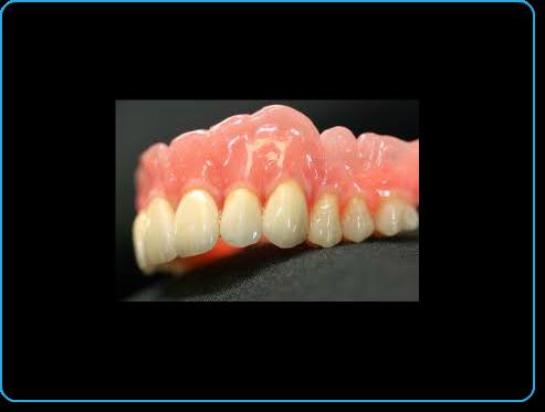 Protesis dentales 4